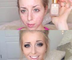Smink acnés bőrre